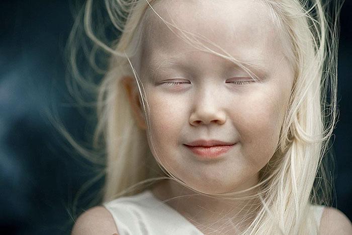 «Снежная Королева» из Сибири. Девочка-альбинос, которая стала настоящей знаменитостью