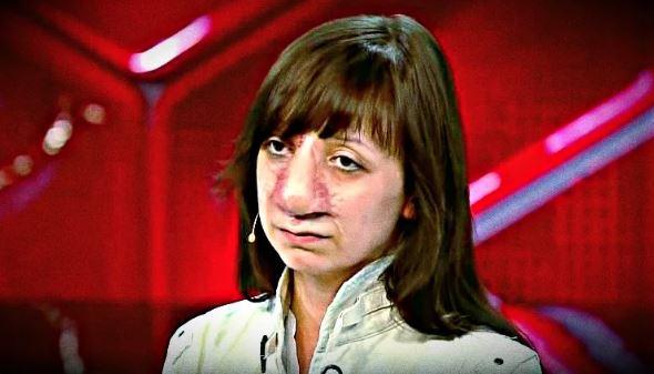 «Её не узнать»: что стало с Яной Муратовой после лечения спустя 4 года