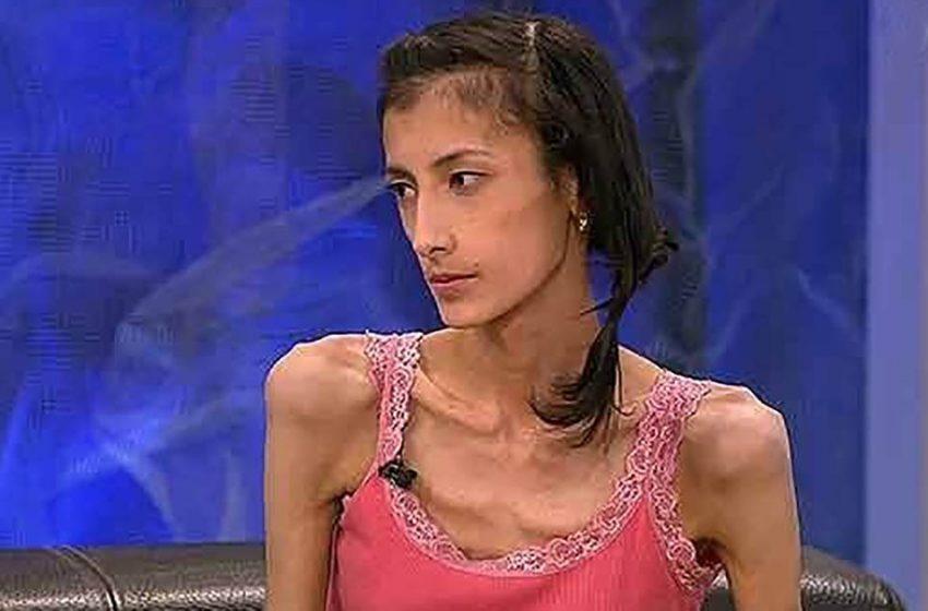 21-килограммовая Наталья Жультаева из передачи «Пусть говорят» набрала вес и сейчас выглядит просто замечательно