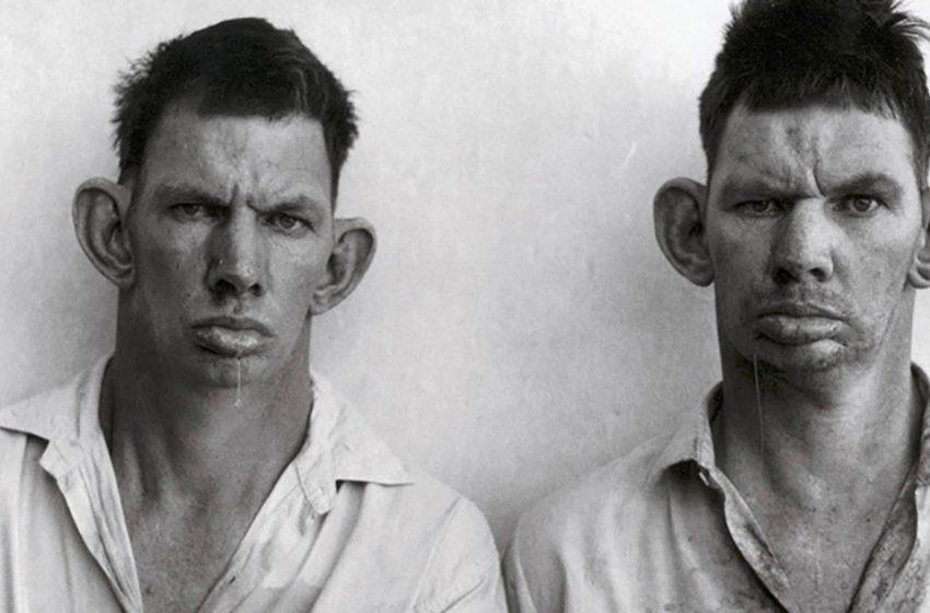 Близнецы, пускающие слюны, на знаменитом фото 1993 года: как сложилась жизнь Дрези и Кэзи