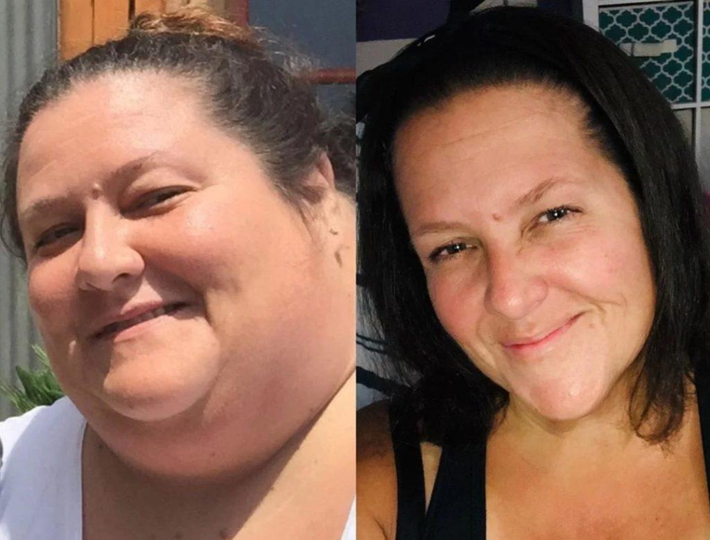 Как Похудеть В Щеках За 3 Дня. 10 правил, чтобы похудеть в лице и появились скулы