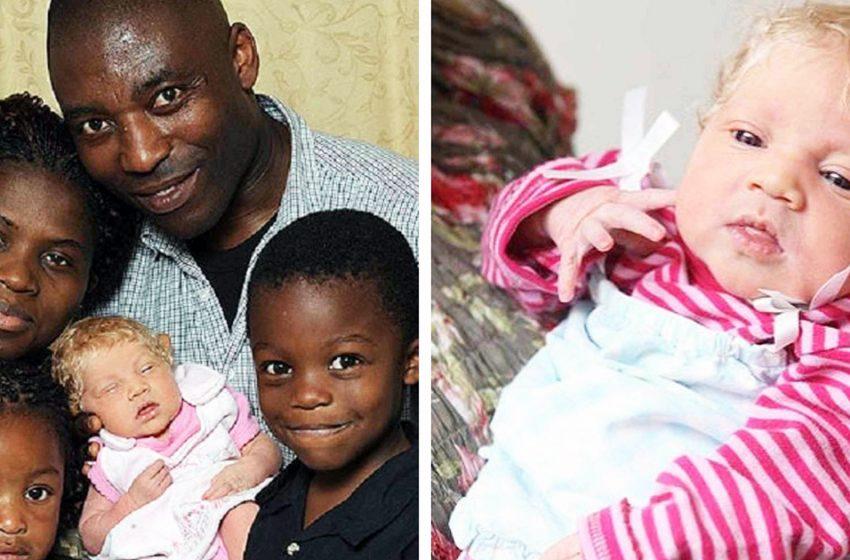 У темнокожей пары появилась дочка-альбинос. Как она выглядит спустя 10 лет?