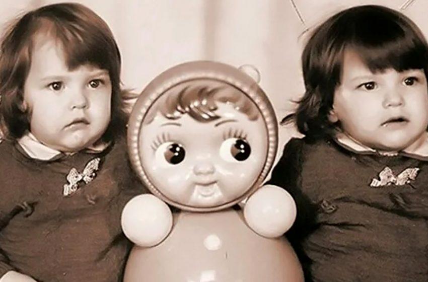 Как спустя 29 лет выглядят впервые разделенные в СССР сиамские близнецы