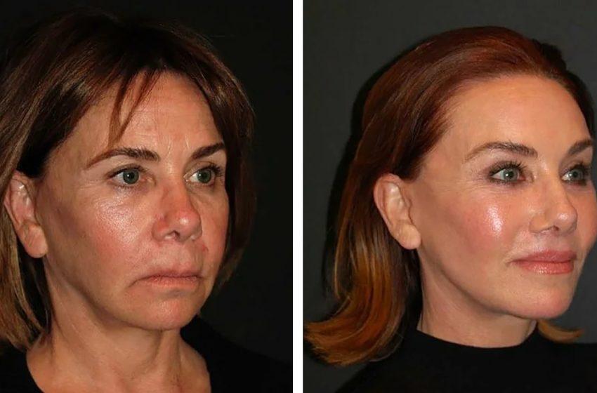Как выглядят обычные женщины 50-70 лет, сделавшие подтяжку лица