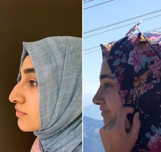 До и после ринопластики: Как обычных девушек изменила ринопластика