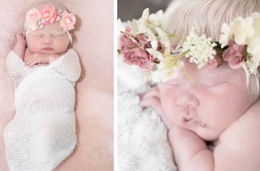 Пару лет назад в мексиканской семье родилась белокурая малышка. Как выглядит девочка сейчас?
